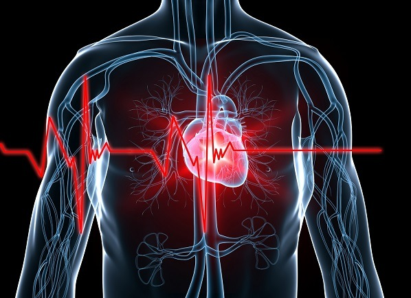 Medical costs associated with cardiovascular events among high-risk patients with hyperlipidemia